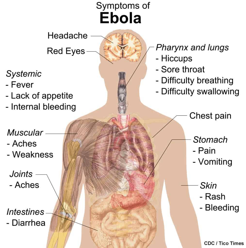 Ebola Virus symptoms