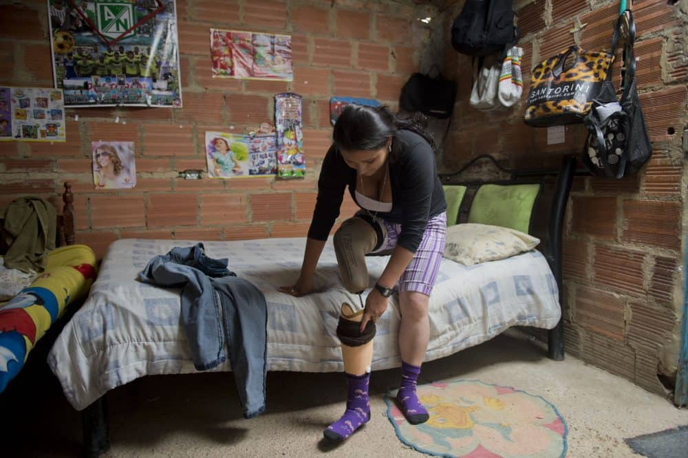 Aurora, a former Revolutionary Armed Forces of Colombia (FARC) member, who had been recruited when she was 12 years old and was injured in an attack, puts on her prosthesis at her house in Bogota on April 24, 2015.