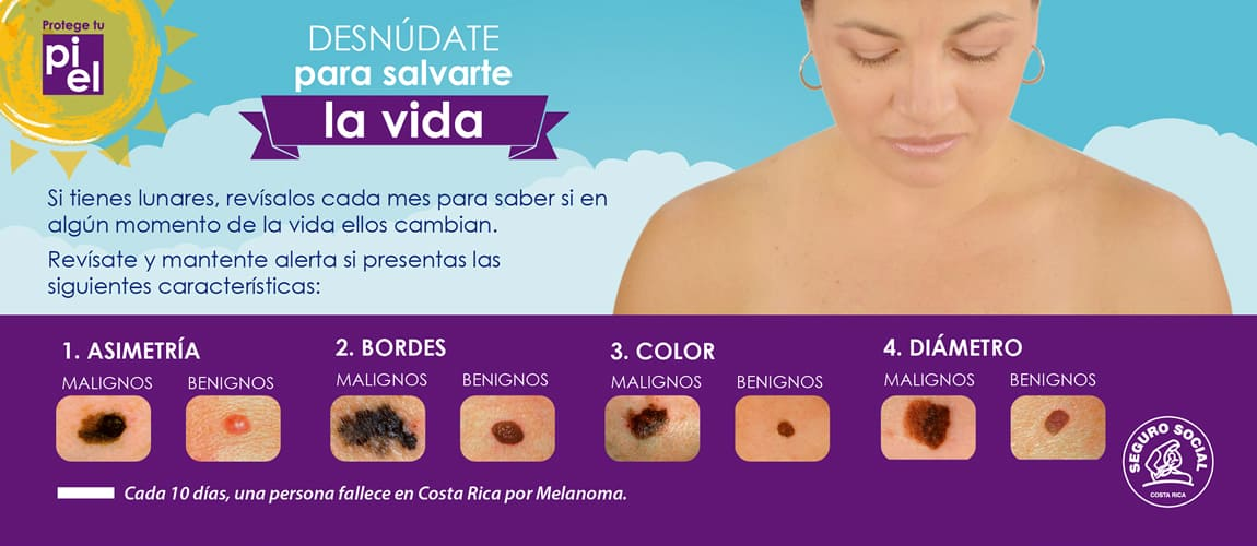Skin cancer campaign