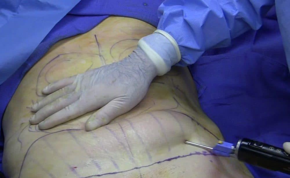 A woman undergoing liposuction.
