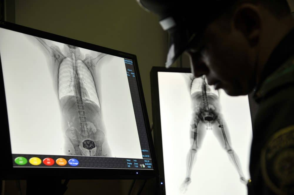 Colombia airport X-rays, drug mules